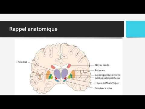 Noyaux Gris De La Base Et Syndromes Extrapyramidaux