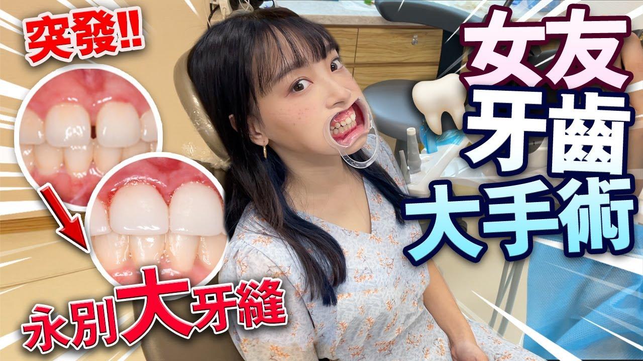 【突發】女友牙齒大手術!永別大牙縫!全部磨光上牙貼片!