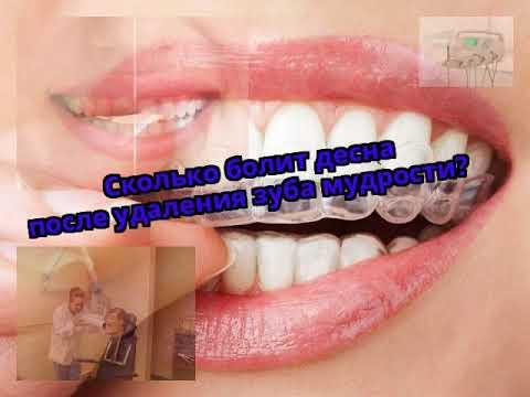 Как долго после удаления зуба мудрости болит десна