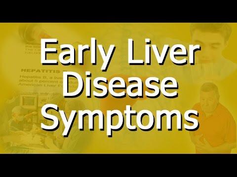 Early Liver Disease Symptoms