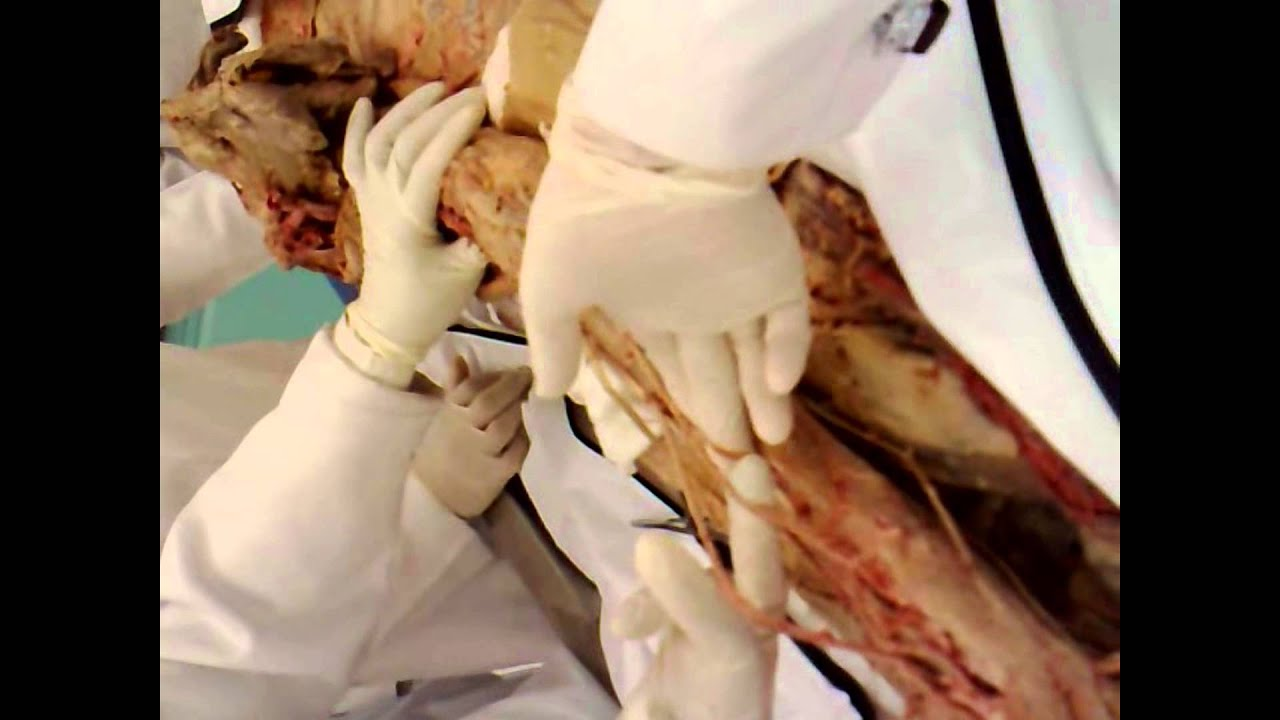 Gross Anatomy-Upper limb-Nerves and vessels of Front of forearm.mp4 ...