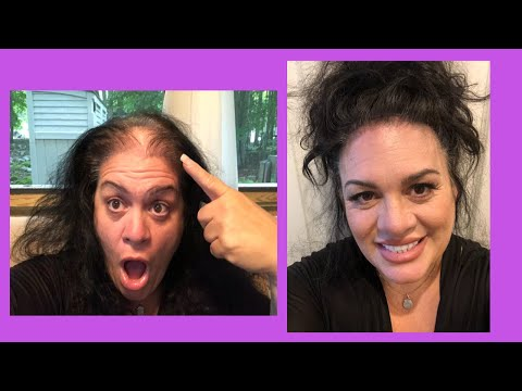 from-bald-to-full-head-of-hair-in-1-minute-updo