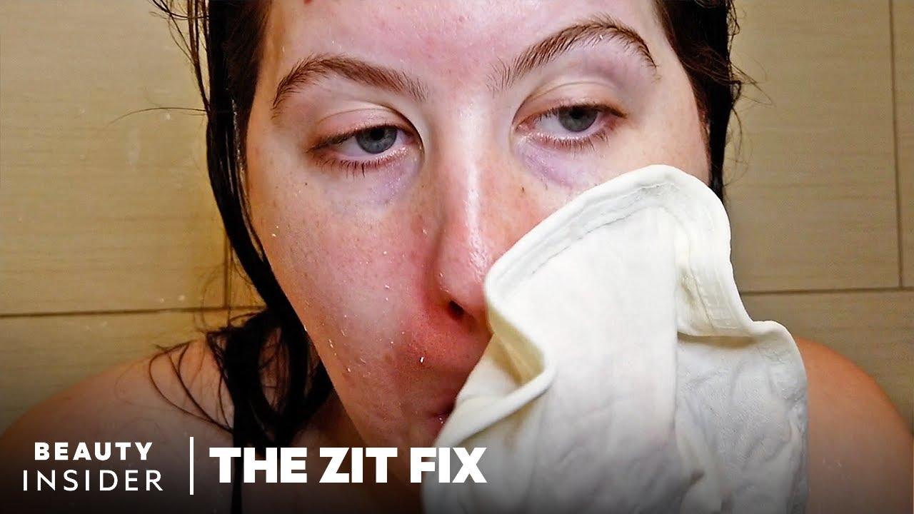 Exfoliating Mitt Scrubs Off Dead Skin In Seconds | The Zit Fix