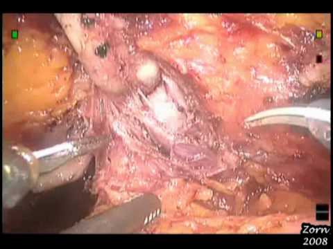 Robotic Radical Prostatectomy Step 1 Posterior Dissection Youtube