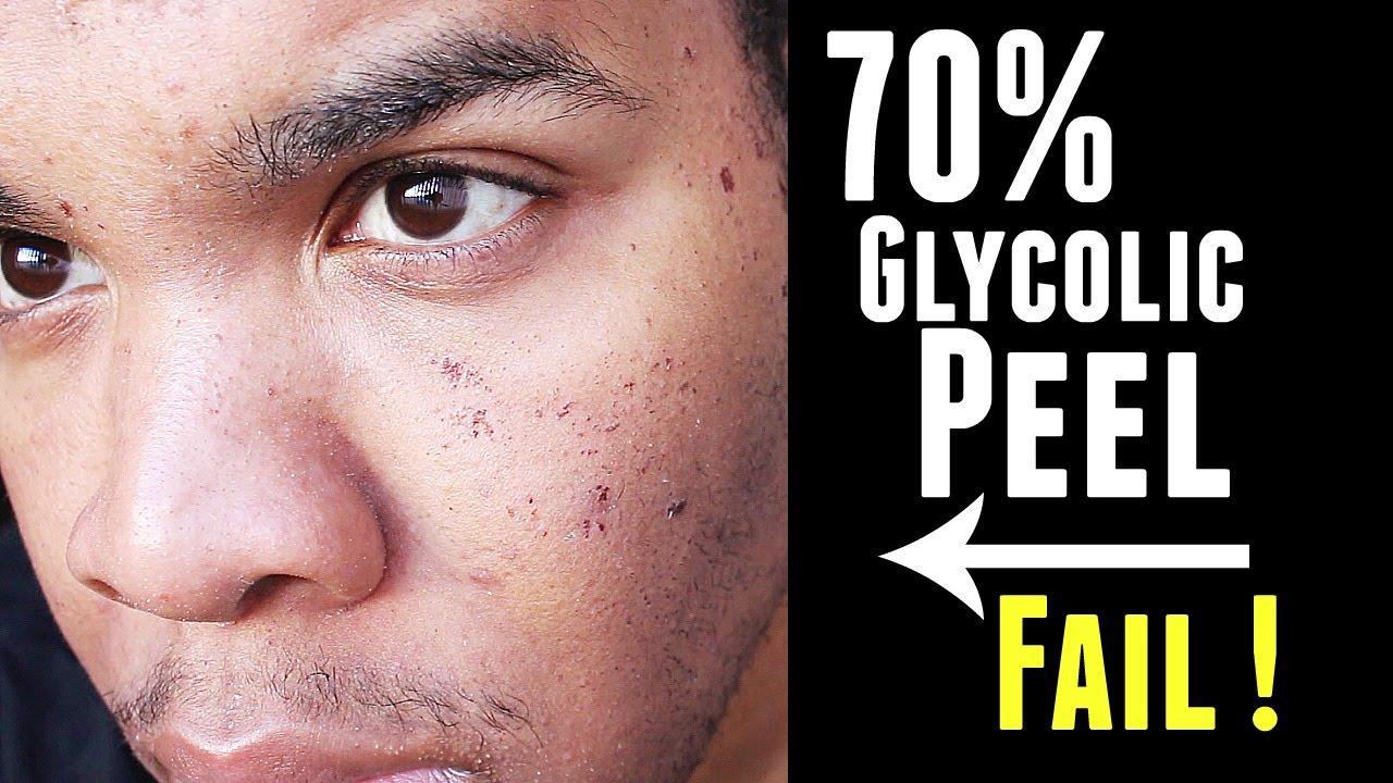 Glycolic Acid Peel Review: I Tried A Glycolic Acid Peel For Acne pics