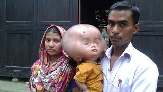 Two year old's skull is the size of a football because of excess fluid on his brain from Bangladesh