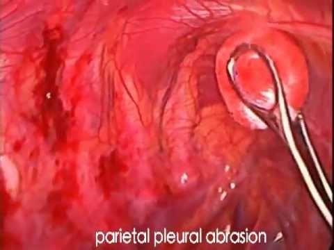 VATS for primary spontaneous pneumothorax