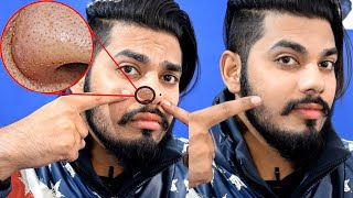 How To Remove Black Head at Home | 100% Working | Asad Ansari