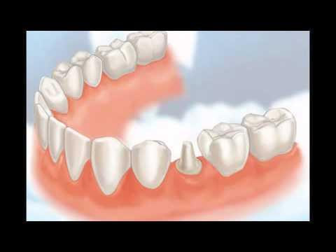 dental-crowns-lindenhurst-il---tooth-crowns-lindenhurst-il---lindenhurst-il-porcelain-crowns