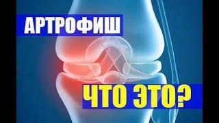 АРТРОФИШ для суставов - Где купить? Цена в аптеках и отзывы врачей