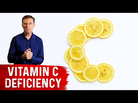 Eighty-two Percent of COVID-19 Patients Were Deficient in Vitamin C