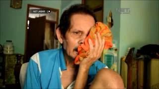 Jumlah Anak Penderita Kanker di Medan Memprihatinkan.