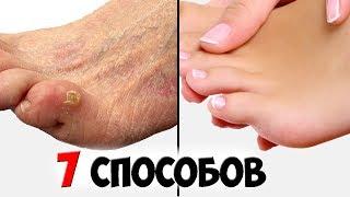 видео Мозоль на пальце ноги: как избавиться быстро и лечить народными средствами
