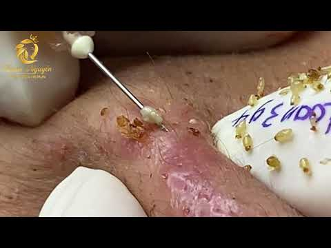Treatment of blackheads and whiteheads (394)   Loan Nguyen