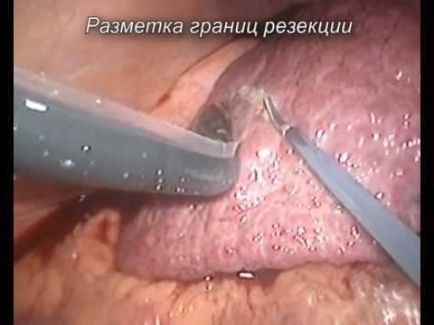 Цирроз печени - симптомы, лечение, признаки, причины