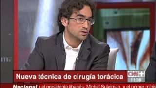 Entrevista CNN+ sobre tecnica pionera en cirugia toracica. http://www.vats.es