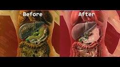 hqdefault - Approved Cleansing Fda Kidney System