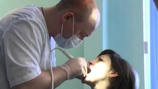 видео профессиональная чистка зубов