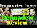 Dermadew Cream | dermadew cream aloe review