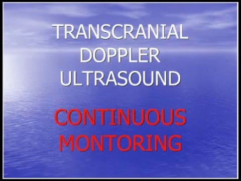 Natus TCD Webinar: Continuous Monitoring With Transcranial Doppler