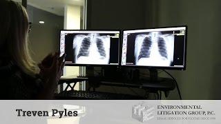Asbestos Recognized Diseases | elglaw.com