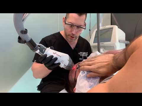 Skin Rejuvenation | Fraxel Laser Treatment | Face & Neck | West Hollywood, Ca. | Dr. Jason Emer