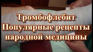 Тромбофлебит - Популярные рецепты народной медицины