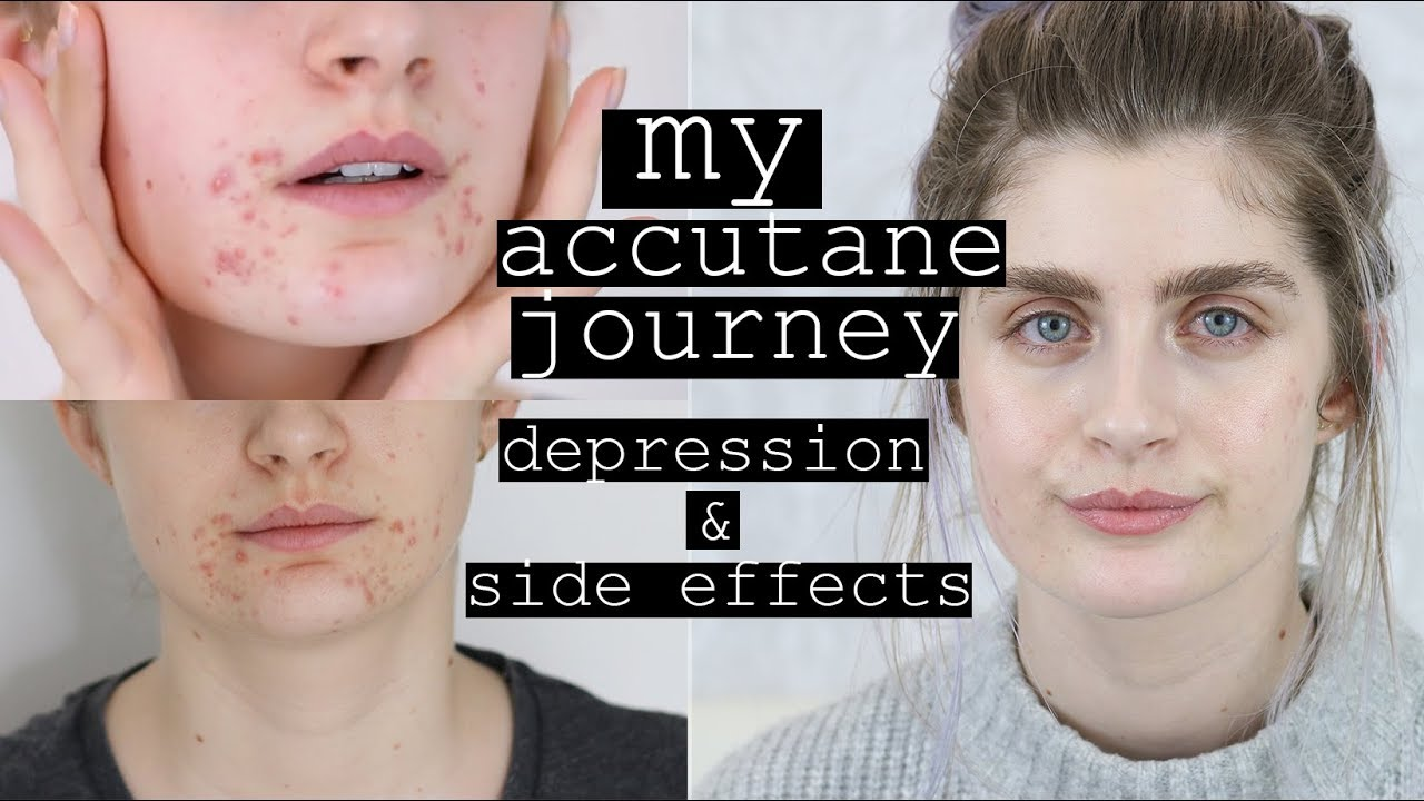 Best way to take Accutane | Accutane for acne # Nothing ...