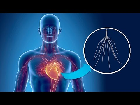 IVC Filter Lawsuits Arise From the High Failure Rate and Severe Injuries