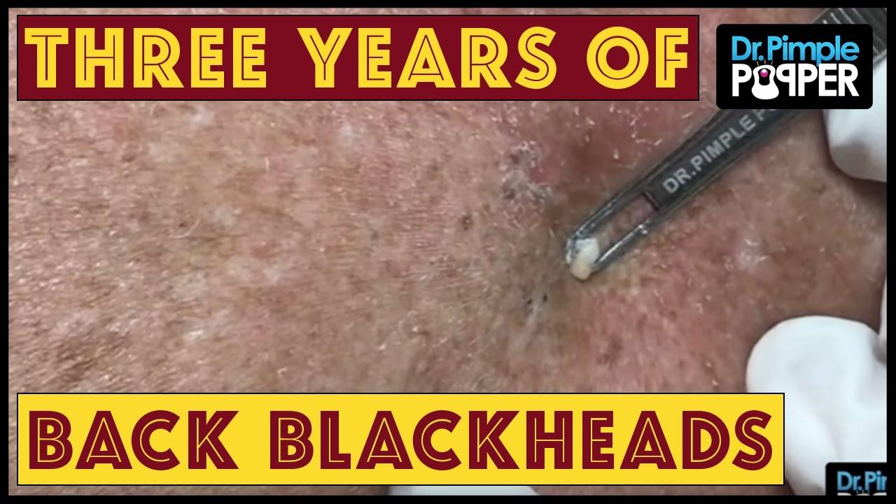 THREE years of Blackheads on the Back, & a Big Seborrheic Keratosis!