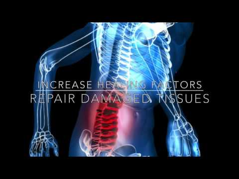 NSI Stem Cell - Tampa - Clearwater - Spring Hill Stem Cell Therapy for Low Back Pain