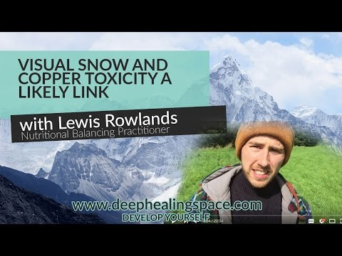 Visual Snow & Copper Toxicity - A Likely Link To Visual Snow