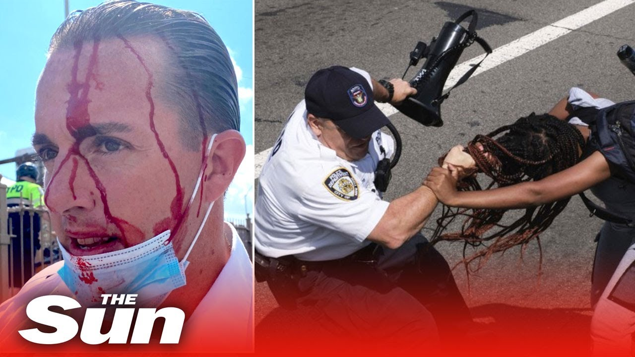 Cops and protesters clash on Brooklyn Bridge leaving police with bloody head injuries