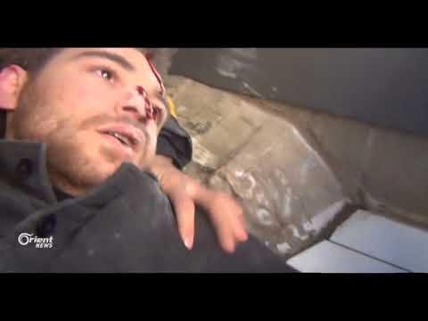"""لحظة إصابة """" يمان السيد """" مراسل أورينت نيوز في ريف دمشق"""