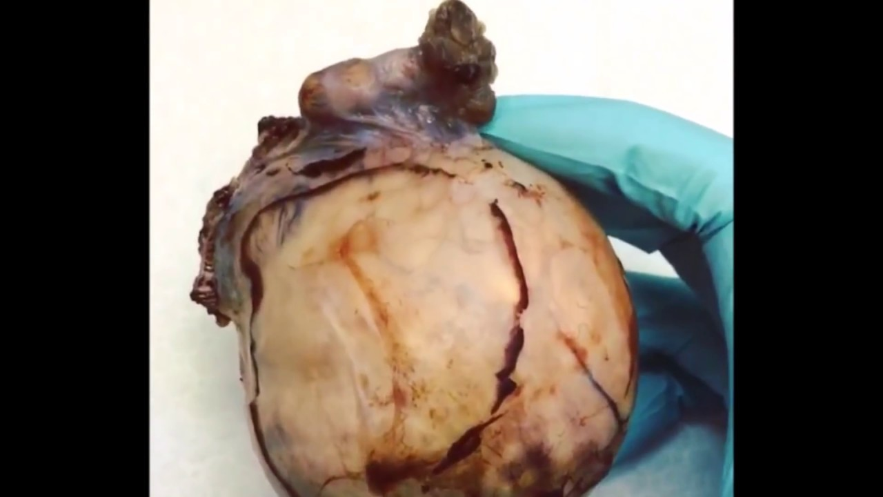 Massive Dermoid Cyst Inner Contents Revealed For Medical ...