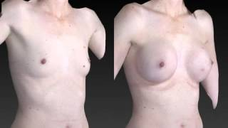 Breast Enhancement 3D Before and After-59