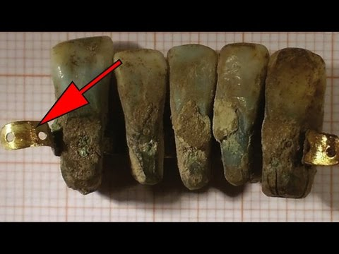 400 Year Old False Teeth Found In Italy | Archaeological Discoveries