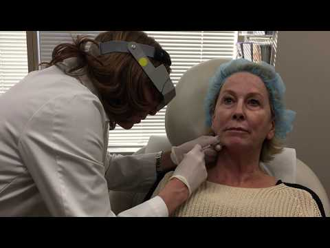 Dr. Isaac performing Botox treatment on jowls