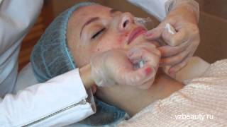 Плазмотерапия лица и волосистой части головы #3