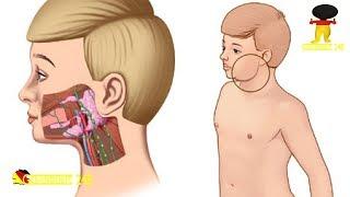 Mumps: Nicht nur eine Kinderkrankheit