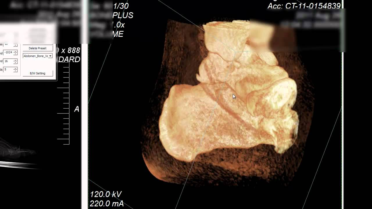 CT Scan Ankle Talus - YouTube
