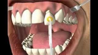 wie entfernt der Zahnarzt eine alte Zahnkrone aus dem Mund