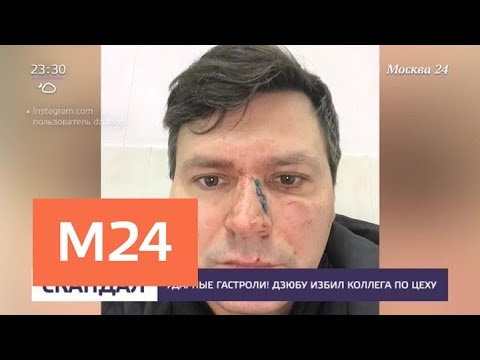 Смотреть фото Дзюбу избил коллега по цеху - Москва 24 новости россия москва