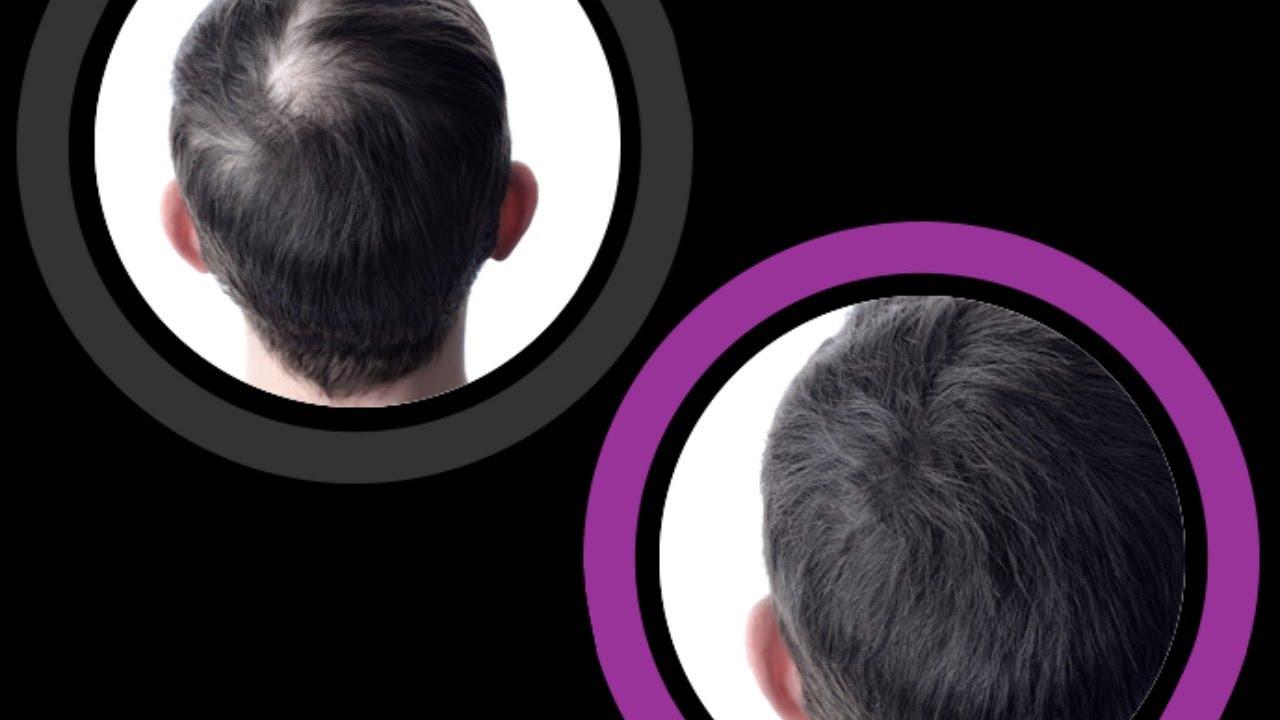 🆕 caduta capelli uomo rimedi efficaci 🏼👉 calvizia uomo ...