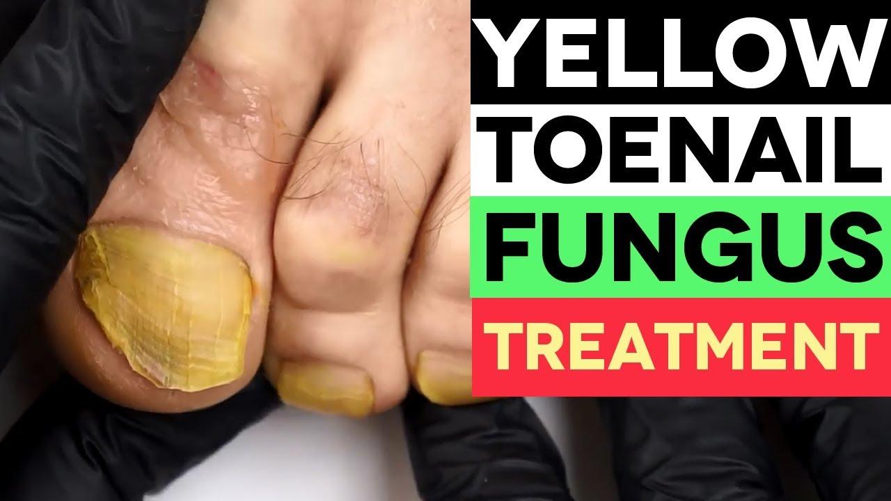 YELLOW Toenail Fungus? Here\'s How to Treat it. - YouTube
