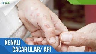 Rubella, Penyakit Menular karena Virus Menyebabkan Ruam Kemerahan pada Kulit.