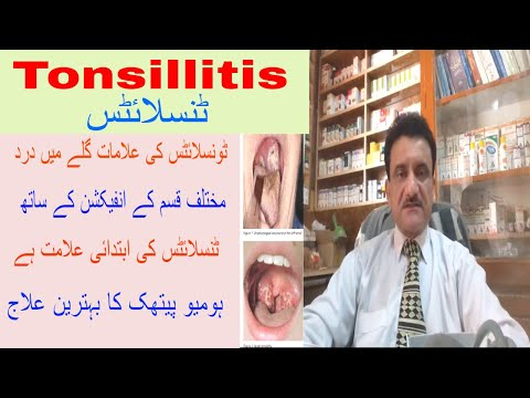Tonsillitis Symptoms nd treatment homoeopathic by Dr Asad Naqvi
