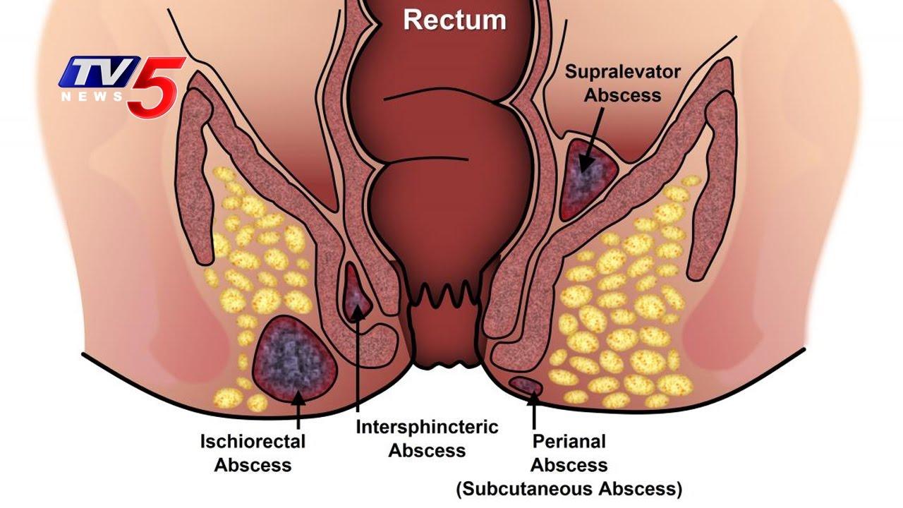 location of anal fistula jpg 422x640