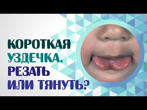 Короткая уздечка.  Резать или тянуть? Короткая уздечка языка