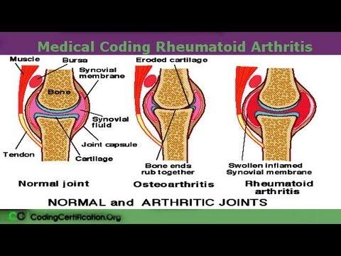 rheuma arthritis icd 10 glükozamin-kondroitin készítmények